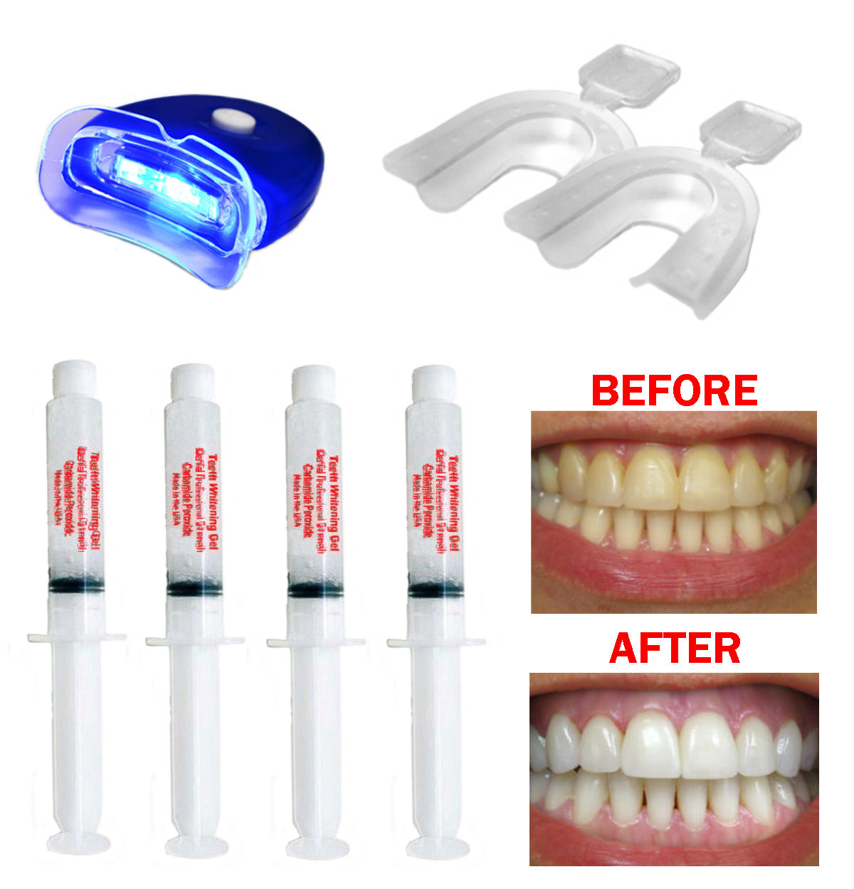 Complete Teeth Whitening Kit Home System 22 Gel Syringe Kit Usa